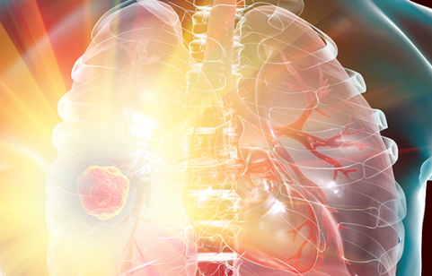 Clinical Cases: Optimizing Outcomes for Patients with Idiopathic Pulmonary Fibrosis Image